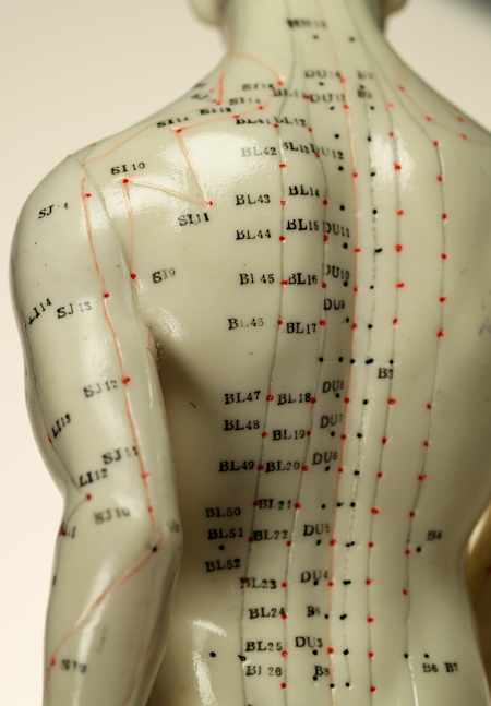 Bret Moldenhauer offers Acupuncture in Chattanooga, TN